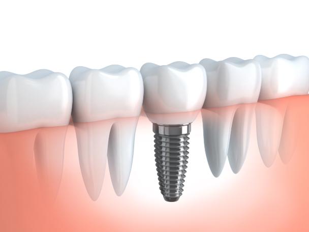 https://mk0corneliusdenu3u6x.kinstacdn.com/wp-content/uploads/2021/01/Dental-Implants-Cornelius-NC-gpw-main-service-pg-img.png