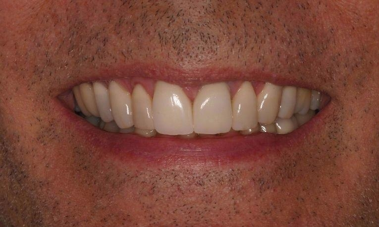 medium_After-Combination-Porcelain-Crowns-and-Veneers