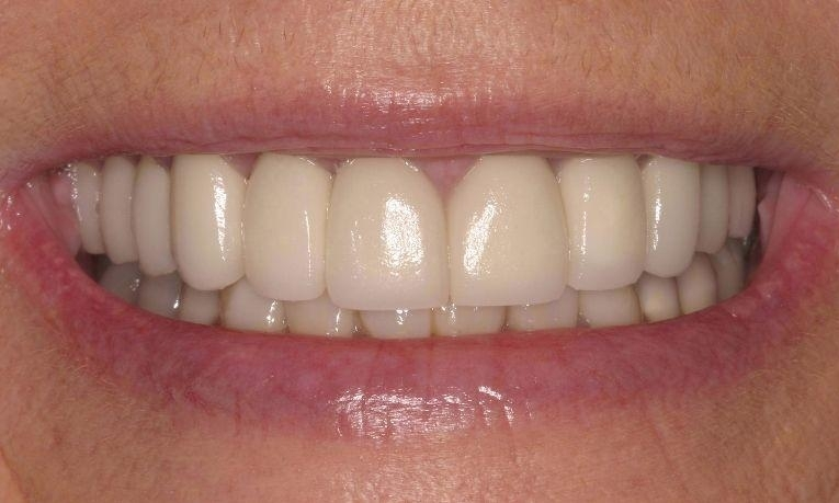 medium_After-Porcelain-Crowns
