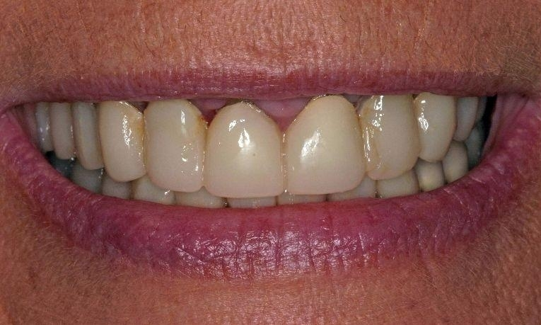medium_Before-Porcelain-Crowns