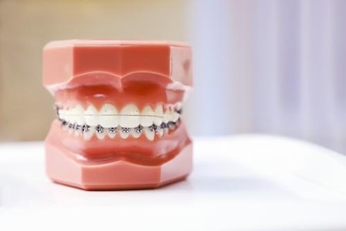 https://www.corneliusdentistry.com/wp-content/uploads/2021/01/metal-braces.jpg