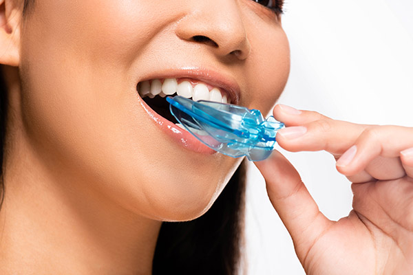 cropped view of asian woman using mouth guard isolated on white